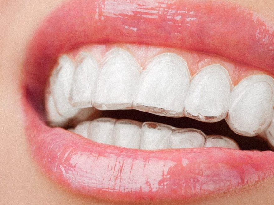 Invisalign - tandretning for voksne